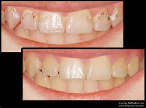 Icon Caries Infiltration Before & After