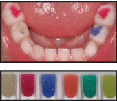 Colored Fillings | FADC