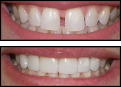Veneers Before/After
