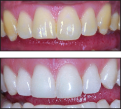 Whitening Before/After