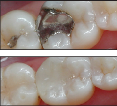 Tooth Colored Fillings Before/After