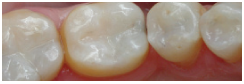 White Fillings After